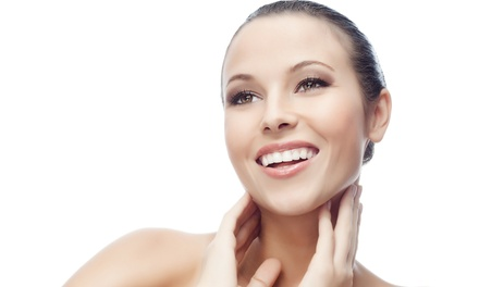 Photofacials on a Small, Medium, or Large Area at Cindi's Laser Beautique at Sanzi Hair Designs & Spa (Up to 70% Off)