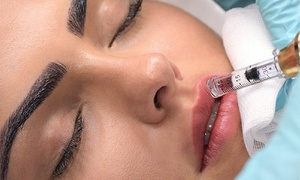 58% Off Hyaluronic Lip Filler at Modern Sculpting