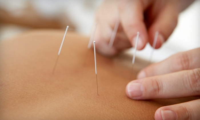 Urban Acupuncture Center - Urban Acupuncture Center: One or Three Acupuncture Treatments at Urban Acupuncture Center (Up to 62% Off)