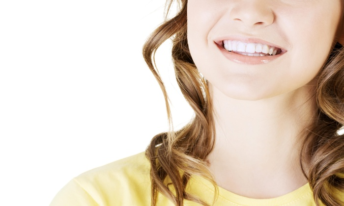 Smiles And Laughs Teeth Whitening - Fort Worth: Two Teeth-Whitening Pens at Smiles and Laughs Teeth Whitening (65% Off)
