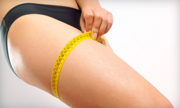 Youthinity - Centerville: $999 for Six Zerona Laser Body-Sculpting Treatments at Youthinity (Up to $2,250 Value)
