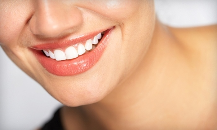 Scotts Valley Spa & Boutique - Scotts Valley: $75 for One Teeth-Whitening Treatment ($150 Value) or $20 for One Sunless Spray Tan ($40 Value) at Scotts Valley Spa & Boutique