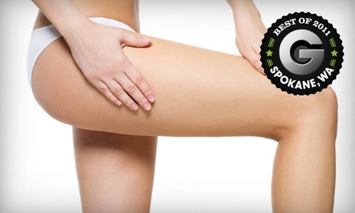 Louisville Laser and Spa - Northtown: $99 for Two Laser Spider-Vein Removal Treatments at Louisville Laser and Spa ($598 Value)