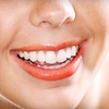 66% Off Dental Care at David M. Jordan, DMD.