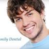 73% Off Teeth Whitening