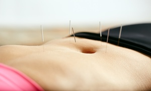 Acupuncure Clinic of Watertown: One or Three 60-Minute Acupuncture Treatments with Assessment at Acupuncure Clinic of Watertown (25% Off)
