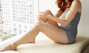 Cosmed Laser Spa: One Year of Unlimited Laser Hair Removal at Cosmed Laser Spa (Up to 95% Off). Four Options Available.