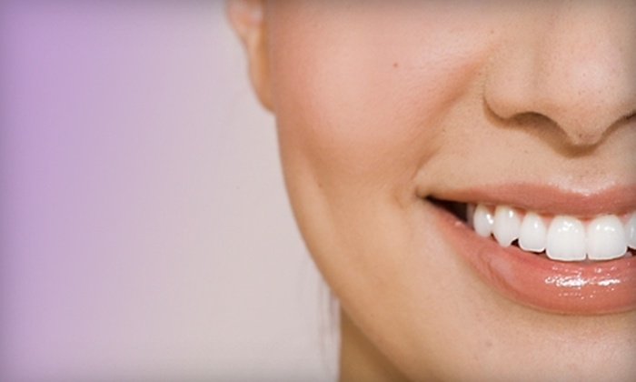 Smile With Zenitude - Village of Key Biscayne: $109 for In-Office Teeth Whitening and Take-Home Trays at Smile with Zenitude in Key Biscayne ($499 Value)