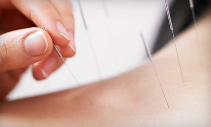 Sassack Family Acupuncture - Multiple Locations: One or Three Acupuncture Sessions at Sassack Family Acupuncture (Up to 68% Off)
