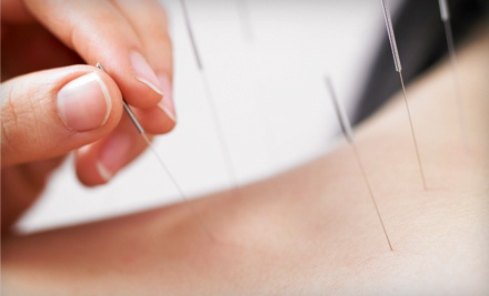 One, Three, or Six Acupuncture Sessions at Sassack Family Acupuncture (Up to 75% Off)