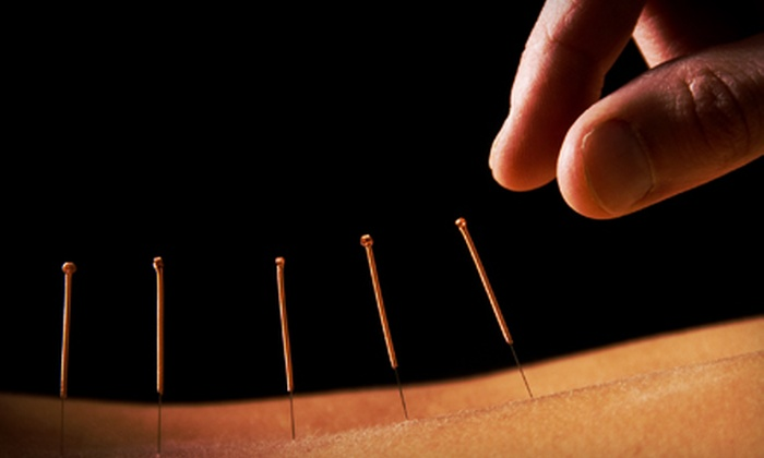 Monmouth Total Health Care - Eatontown: $59 for Three Acupuncture Treatments at Monmouth Total Health Care ($285 Value)