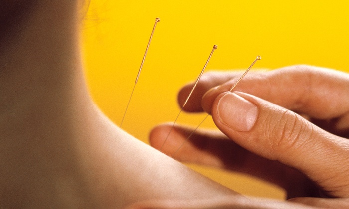 Marinwood Community Acupuncture - Lucas Valley-Marinwood: Two or Four Acupuncture Treatments at Marinwood Community Acupuncture (Up to 73% Off)