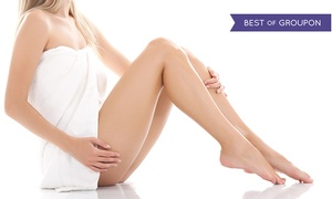 Cosmetic Laser MedSpa: Two or Four Spider Vein Removal Treatments at Cosmetic Laser Center of Beverly Hills (Up to 69% Off)