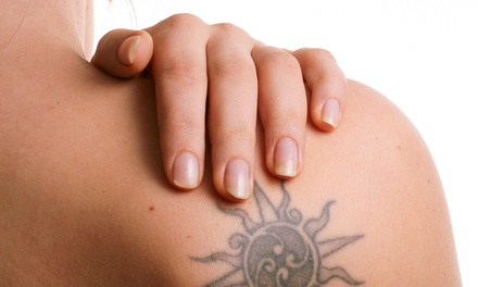 Two Laser Tattoo-Removal Sessions for Four or Eight Square Inches (Up to 78% Off)
