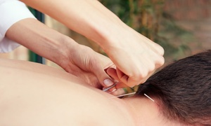 Spirit Seal Acupuncture: Up to 53% Off immune boosting services at Spirit Seal Acupuncture
