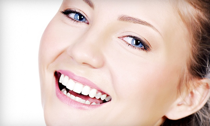 California Smile - Pleasant Hill: Four, Six, or Eight Porcelain Veneers at California Smile in Pleasant Hill (Half Off)
