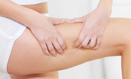 One, Three, or Five Synergie Cellulite-Reduction Treatments at BienEstar Massage (Up to 56% Off)