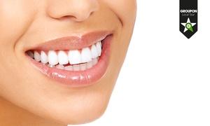 Nicola Paoleschi: Una o 2 visite odontoiatriche con pulizia e smacchiamento o sbiancamento LED. Valido in 5 sedi