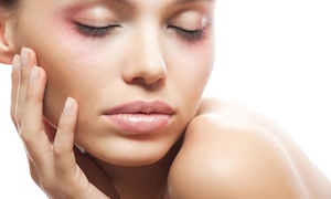 The PRP Institute: Two, Four, or Six Dermapen Treatments with Hyaluronic Sessions at The PRP Institute (Up to 64% Off)