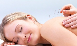 Central Jersey Spine & Wellness: An Acupuncture Treatment at Central Jersey Spine & Wellness, LLC (80% Off)