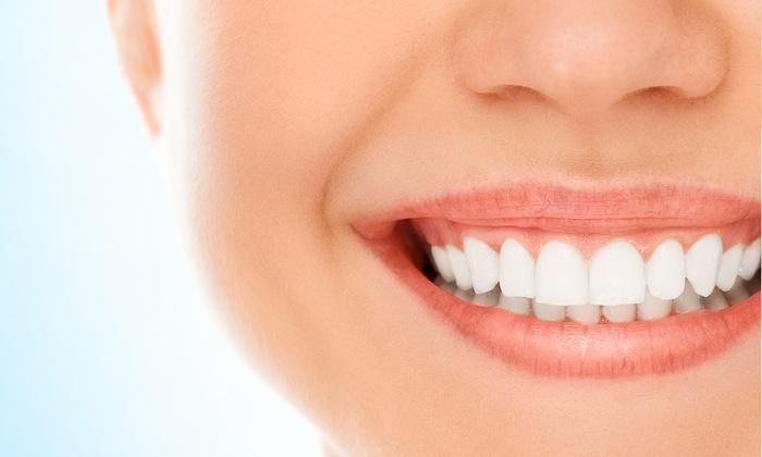 Studio Dentistico Pizza - Bologna: Visita odontoiatrica con smacchiamento o in più otturazione oppure impronte da 29,90 €