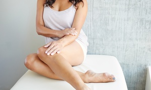 MINTS: Two or Three Sclerotherapy Treatments at MINTS (Up to 76% Off)
