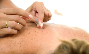 Medical Acupuncture: One or Three Sessions at Medical Acupuncture (Up to 52% Off)