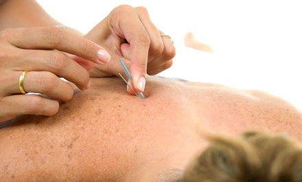 One or Three Sessions at Medical Acupuncture (Up to 52% Off)