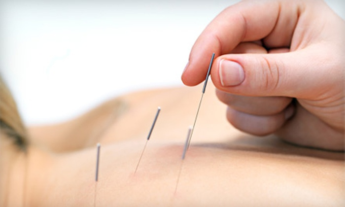 Jax Acupuncture - Jacksonville Beach: One or Two 60-Minute Acupuncture Sessions at Jax Acupuncture in Jacksonville Beach (Up to 76% Off)