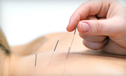 60-Minute Acupuncture Session (an $80 value) - Jax Acupuncture in Jacksonville Beach