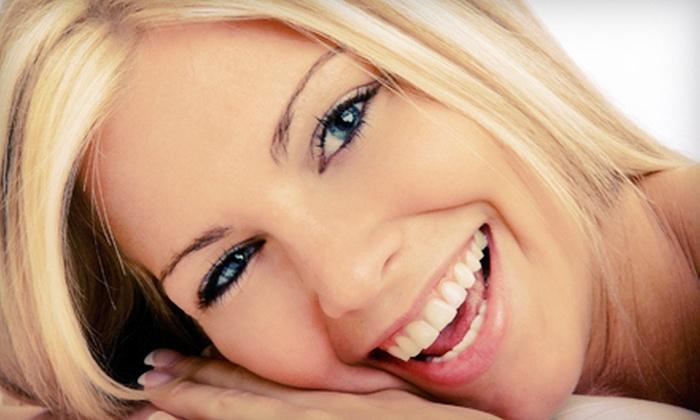 Abella Ultra-White - Columbus Teeth Whitening: $99 for Three Consecutive Teeth-Whitening Treatments at Abella Ultra-White ($297 Value)