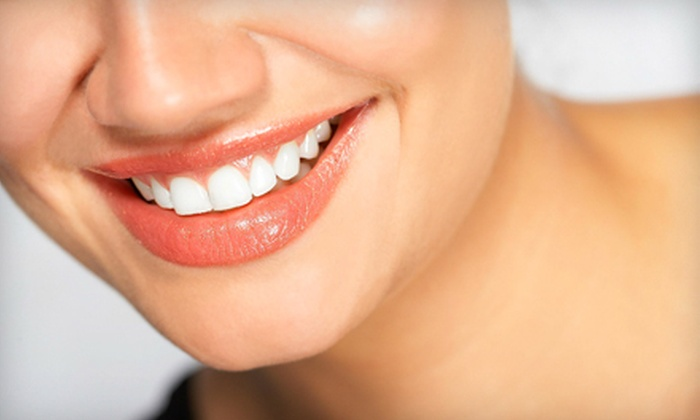 White Shade Express Teeth Whitening - Cityview - Skyline - Fisher Heights: $69 for a Power Teeth-Whitening Treatment from White Shade Express Teeth Whitening in Nepean ($179.95 Value)