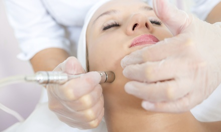 One or Three Medical Grade Microdermabrasions at Advanced Dermatology & Laser Center (Up to 74%  Off)