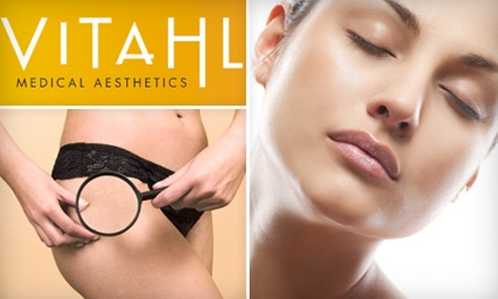 Vitahl Medical Aesthetics - Cherry Creek: $149 for Laser Vein Therapy at Vitahl Medical Aesthetics ($325 Value)