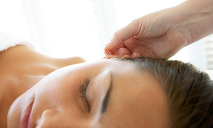 Up to 79% Off Acupuncture at Weaving Harmony Health & Wellness