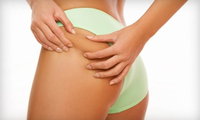 American Laser Centers - Corpus Christi: $99 for Three VelaShape Fat- and Cellulite-Reduction Treatments at American Laser Centers ($1,650 Value)
