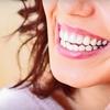 61% Off Teeth Whitening in Georgetown