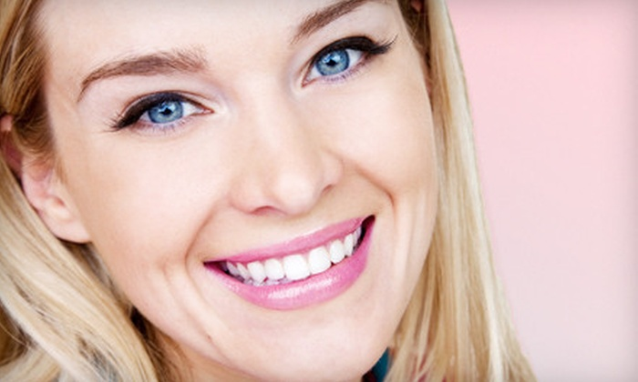Smile White Now Teeth Whitening Salon - Albuquerque: Take-Home Teeth-Whitening Kit or an In-Office Treatment from Smile White Now Teeth Whitening Salon (Up to 76% Off)