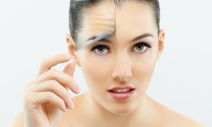 BELLO DENTAL ASSOCIATES: Up to 40% Off Botox Injections at BELLO DENTAL ASSOCIATES