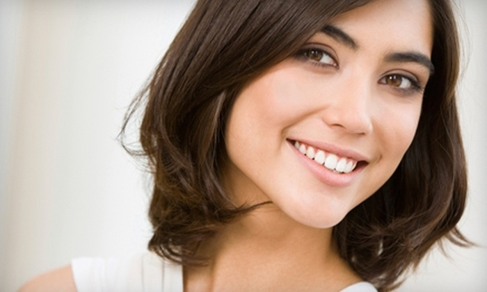 Smile Splendor of Houston - Briarforest: $89 for a One-Hour In-Office Teeth Whitening Treatment and Take-Home Whitening Pen from Smile Splendor of Houston ($324.94 Value)