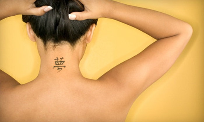 Dr. Tattoff - Multiple Locations: $99 for $350 Worth of Laser Tattoo Removal at Dr. Tattoff