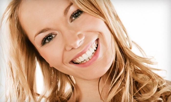 Windermere Center for Dentistry - Windermere: $59 for Opalescence Customized Take-Home Teeth-Whitening Treatment from Windermere Center for Dentistry ($295 Value)