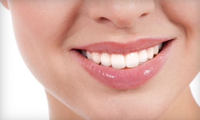 Greenfield Dentists - Greenfield: $99 for Dental Exam, Cleaning, X-rays, and Whitening Treatment at Greenfield Dentists ($630 Value)