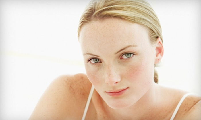 Canterbury Spa - Plain: One or Three Photofacial Packages at Canterbury Spa in North Canton (Up to 52% Off)