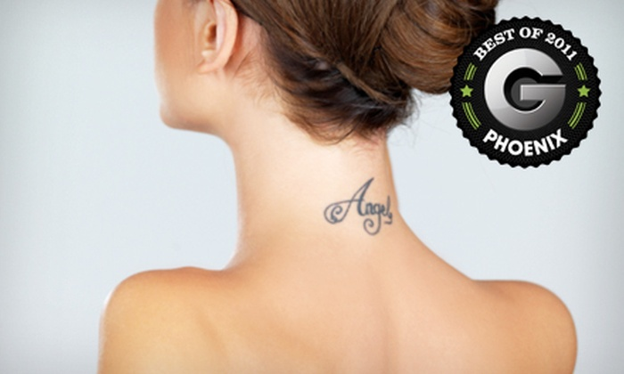 Delete Tattoo Removal & Laser Salon - Camelback East: One or Three Laser Tattoo-Removal Treatments at Delete Tattoo Removal & Laser Salon (Up to 60% Off)
