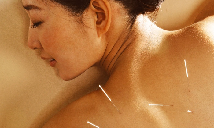 Lily Wu Acupuncture Clinic - Bascom - Forest: One or Three 60-Minute Sessions with Consultation at Lily Wu Acupuncture Clinic (Up to 78% Off)