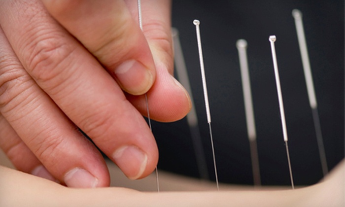 Long Acupuncture Studios - Multiple Locations: Two or Three Full-Body Acupuncture Treatments at Long Acupuncture Studios (Up to 69% Off). Two Locations Available.