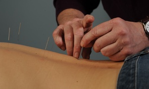 Inner Courtyard: An Acupuncture Treatment and an Initial Consultation at Inner Courtyard (65% Off)