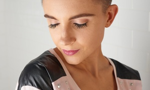 New Look Laser: 20 or 30 Units of Botox at New Look Laser (Up to 68% Off)