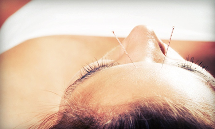 Acussage Wellness - Central Business District: One or Three Acupuncture Sessions at Acussage Wellness (Up to 53% Off)